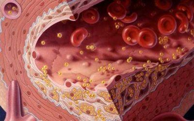 5 фактов о холестерине, которые вы еще не знаете